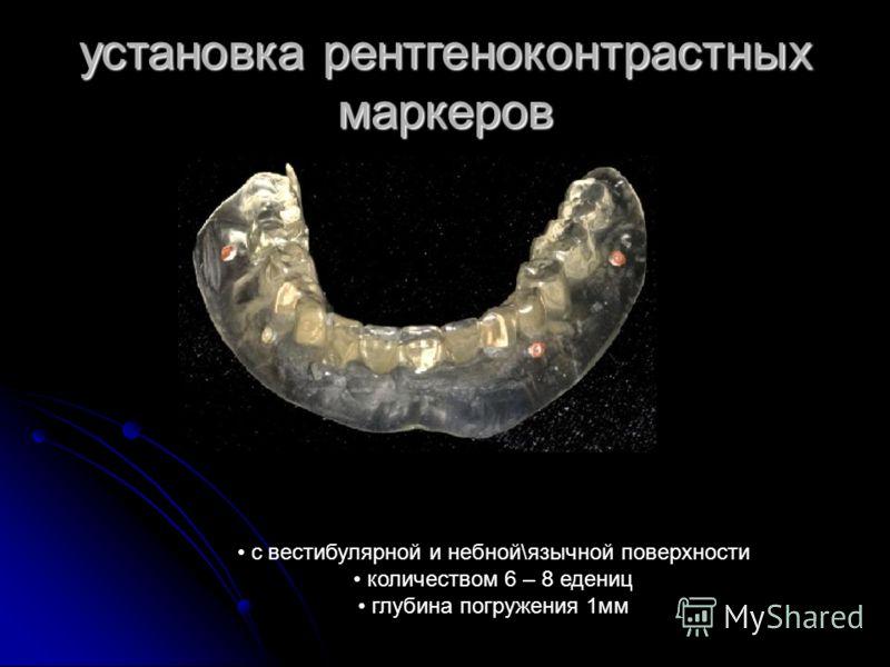 установка рентгеноконтрастных маркеров с вестибулярной и небной\язычной поверхности количеством 6 – 8 едениц глубина погружения 1мм