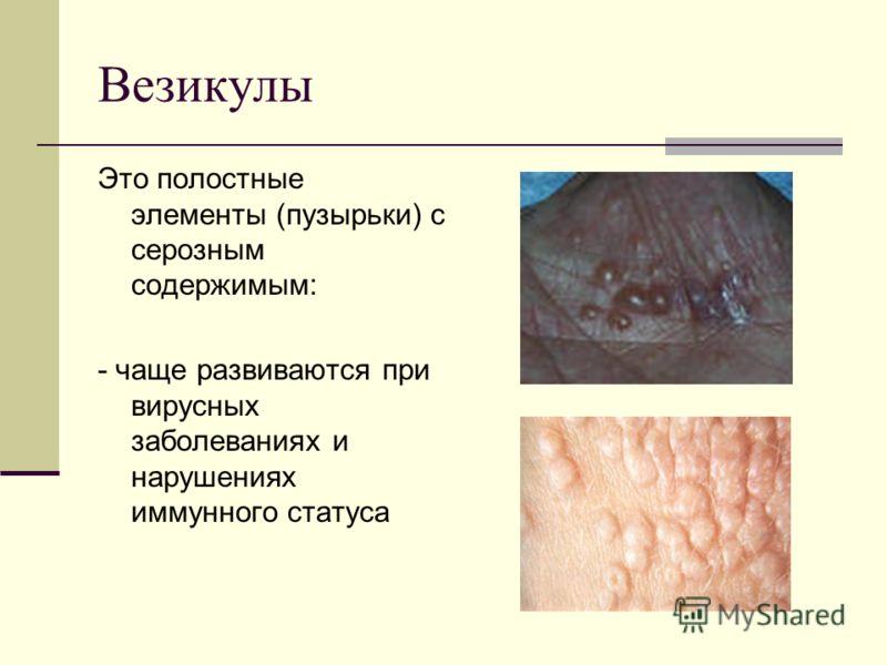 Везикулы Это полостные элементы (пузырьки) с серозным содержимым: - чаще развиваются при вирусных заболеваниях и нарушениях иммунного статуса