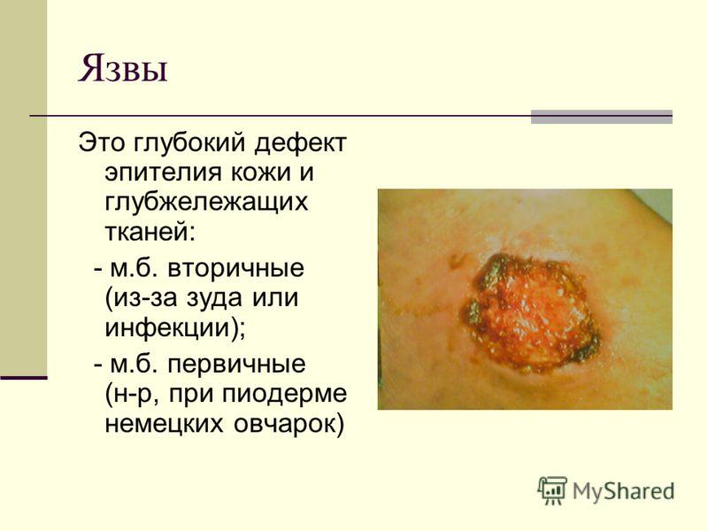 Язвы Это глубокий дефект эпителия кожи и глубжележащих тканей: - м.б. вторичные (из-за зуда или инфекции); - м.б. первичные (н-р, при пиодерме немецких овчарок)
