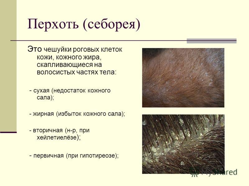 Перхоть (себорея) Это чешуйки роговых клеток кожи, кожного жира, скапливающиеся на волосистых частях тела: - сухая (недостаток кожного сала); - жирная (избыток кожного сала); - вторичная (н-р, при хейлетиелёзе ); - первичная (при гипотиреозе);