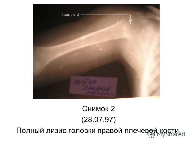 Снимок 2 (28.07.97) Полный лизис головки правой плечевой кости.