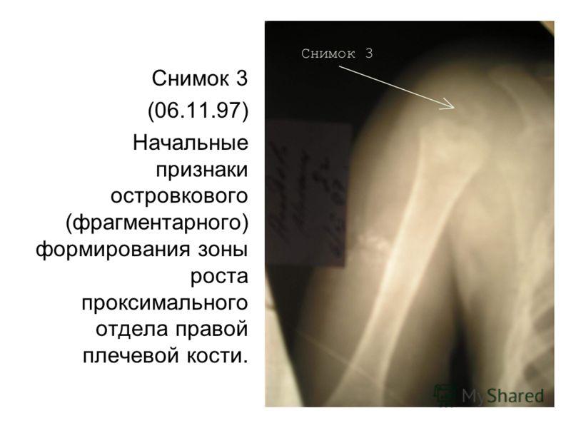 Снимок 3 (06.11.97) Начальные признаки островкового (фрагментарного) формирования зоны роста проксимального отдела правой плечевой кости.