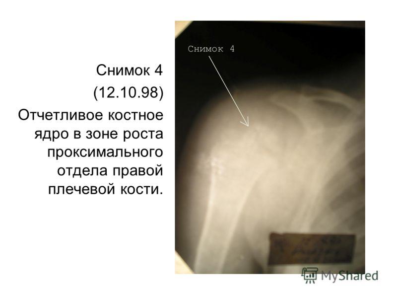 Снимок 4 (12.10.98) Отчетливое костное ядро в зоне роста проксимального отдела правой плечевой кости.