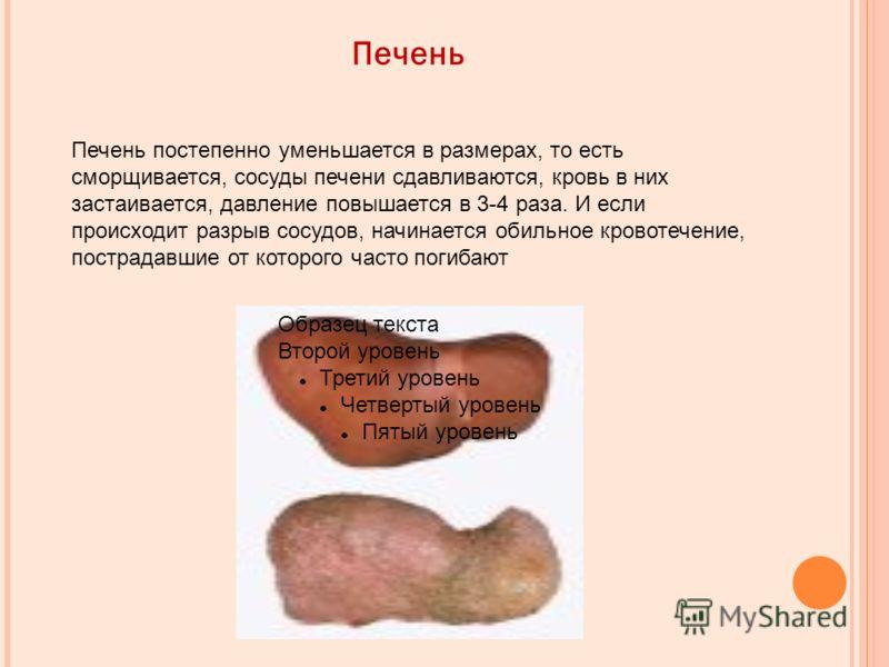 Печень Образец текста Второй уровень Третий уровень Четвертый уровень Пятый уровень Печень постепенно уменьшается в размерах, то есть сморщивается, сосуды печени сдавливаются, кровь в них застаивается, давление повышается в 3-4 раза. И если происходи
