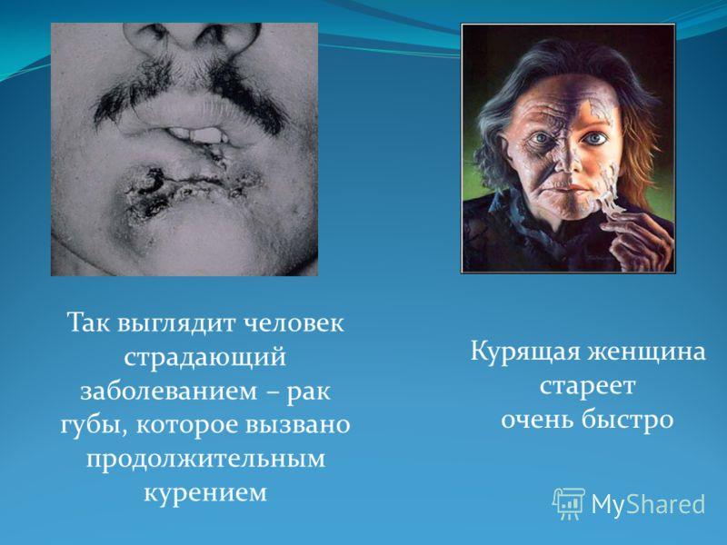 Так выглядит человек страдающий заболеванием – рак губы, которое вызвано продолжительным курением Курящая женщина стареет очень быстро