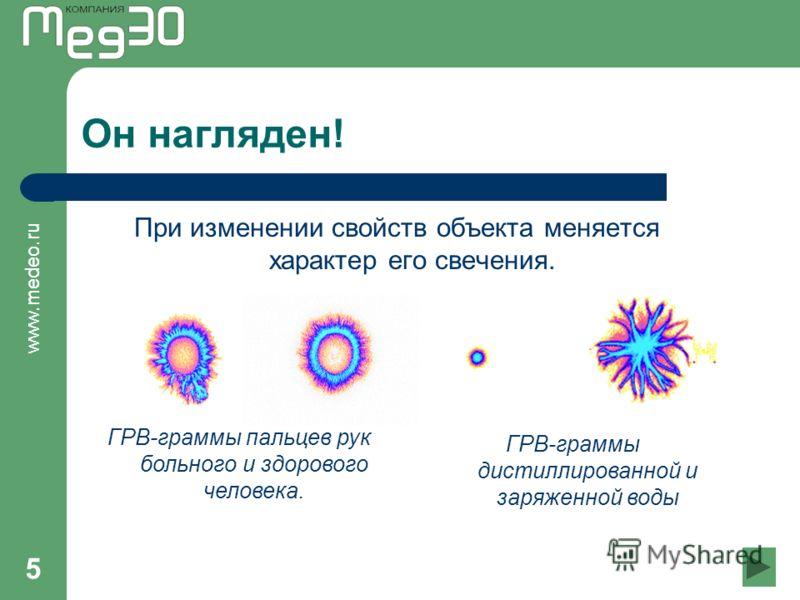 www.medeo.ru 5 Он нагляден! При изменении свойств объекта меняется характер его свечения. ГРВ-граммы пальцев рук больного и здорового человека. ГРВ-граммы дистиллированной и заряженной воды