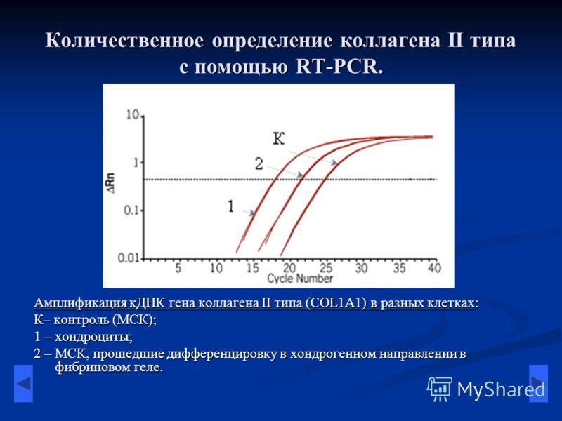 Количественное определение коллагена II типа с помощью RT-PCR. Амплификация кДНК гена коллагена II типа (COL1A1) в разных клетках: К– контроль (МСК); 1 – хондроциты; 2 – МСК, прошедшие дифференцировку в хондрогенном направлении в фибриновом геле.