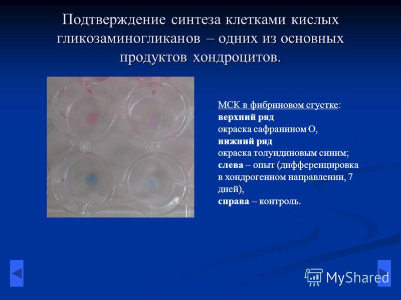 Подтверждение синтеза клетками кислых гликозаминогликанов – одних из основных продуктов хондроцитов. МСК в фибриновом сгустке: верхний ряд окраска сафранином О, нижний ряд окраска толуидиновым синим; слева – опыт (дифференцировка в хондрогенном напра