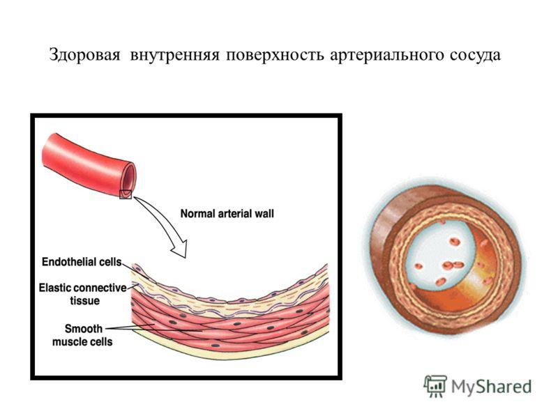 Здоровая внутренняя поверхность артериального сосуда