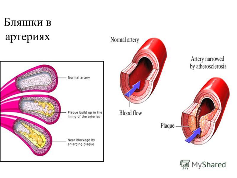Бляшки в артериях