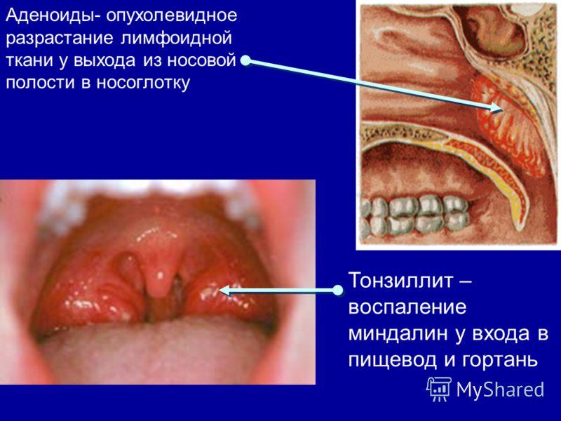Аденоиды- опухолевидное разрастание лимфоидной ткани у выхода из носовой полости в носоглотку Тонзиллит – воспаление миндалин у входа в пищевод и гортань