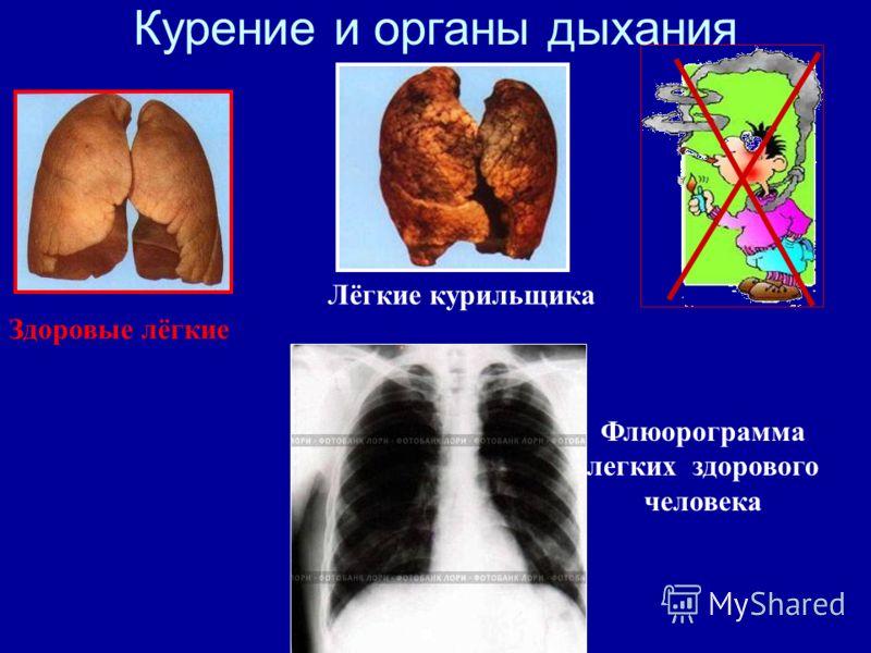 Здоровые лёгкие Лёгкие курильщика Флюорограмма легких здорового человека Курение и органы дыхания