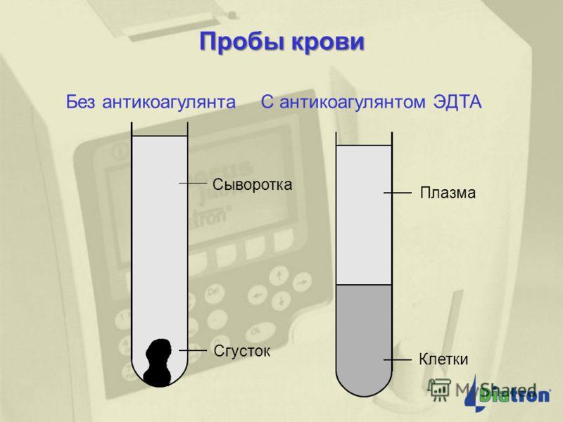 Измерение гемоглобина Источник света (лампа) 540 нм фильтр Разведенная проба с гемолитиком Фото- детектор