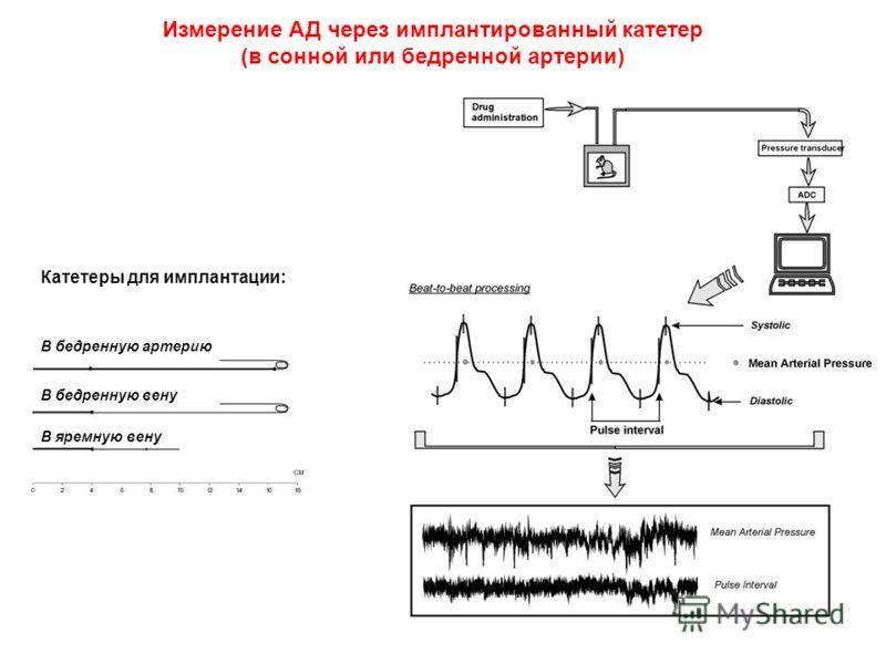Измерение АД через имплантированный катетер (в сонной или бедренной артерии) Катетеры для имплантации: В бедренную артерию В бедренную вену В яремную вену