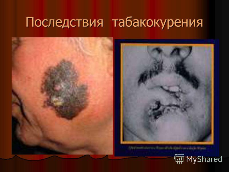 Последствия табакокурения