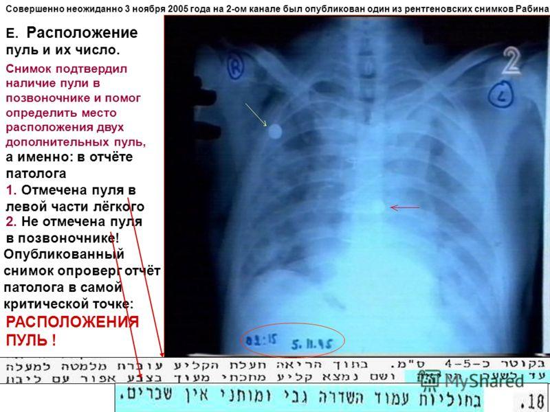 Совершенно неожиданно 3 ноября 2005 года на 2-ом канале был опубликован один из рентгеновских снимков Рабина Е. Расположение пуль и их число. Снимок подтвердил наличие пули в позвоночнике и помог определить место расположения двух дополнительных пуль