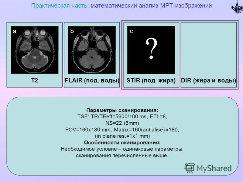 T2 Практическая часть: математический анализ МРТ-изображений FLAIR (под. воды)DIR (жира и воды)STIR (под. жира) Параметры сканирования: TSE: TR/TEeff=5600/100 ms, ETL=8, NS=22 (6mm) FOV=160x180 mm, Matrix=160(antialise) x180, (in plane res.=1x1 mm) О