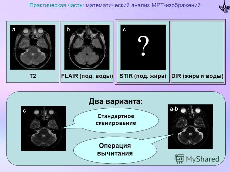 T2 Практическая часть: математический анализ МРТ-изображений FLAIR (под. воды)DIR (жира и воды)STIR (под. жира) Два варианта: ab c a-b Операция вычитания Стандартное сканирование