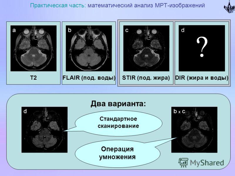 T2 Практическая часть: математический анализ МРТ-изображений FLAIR (под. воды)DIR (жира и воды)STIR (под. жира) Два варианта: abc b x cd Стандартное сканирование Операция умножения