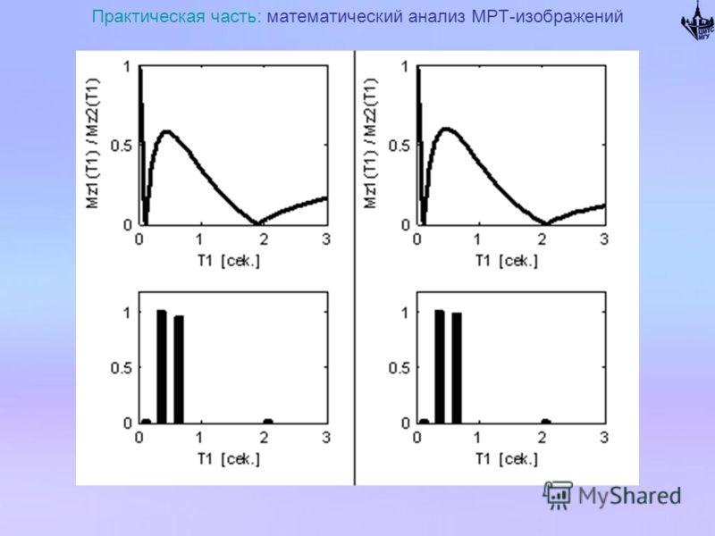 Практическая часть: математический анализ МРТ-изображений