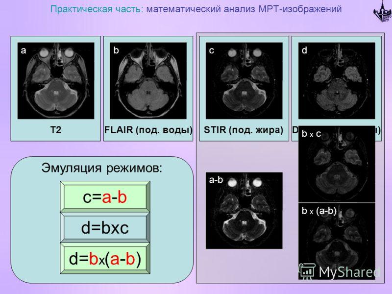 T2 Практическая часть: математический анализ МРТ-изображений FLAIR (под. воды)DIR (жира и воды)STIR (под. жира) Эмуляция режимов: abcd d=b x (a-b) c=a-b d=bxc a-b b x c b x (a-b)