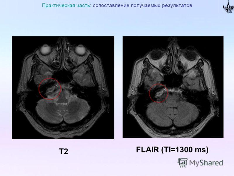 Практическая часть: сопоставление получаемых результатов Т2 FLAIR (TI=1300 ms)
