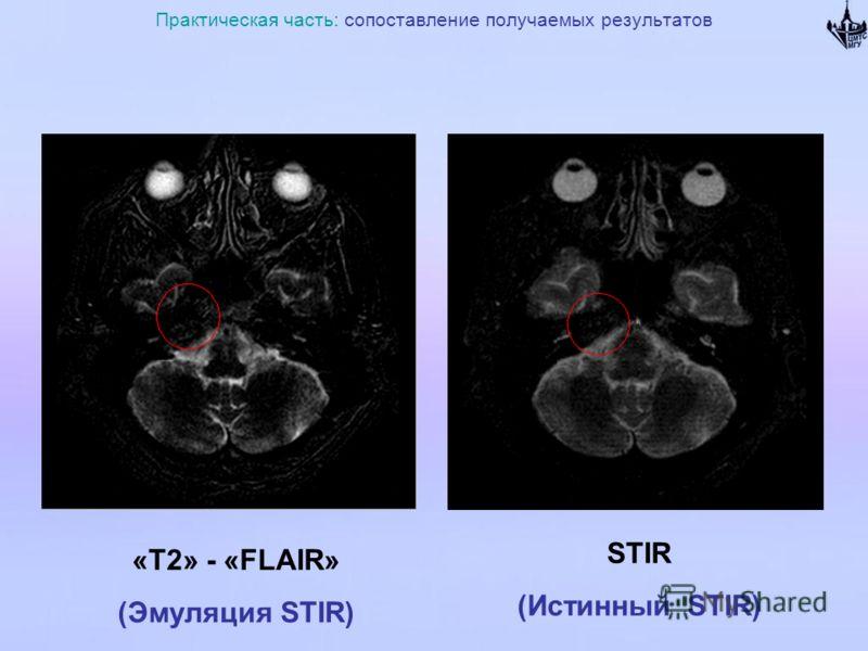 Практическая часть: сопоставление получаемых результатов «Т2» - «FLAIR» (Эмуляция STIR) STIR (Истинный STIR)