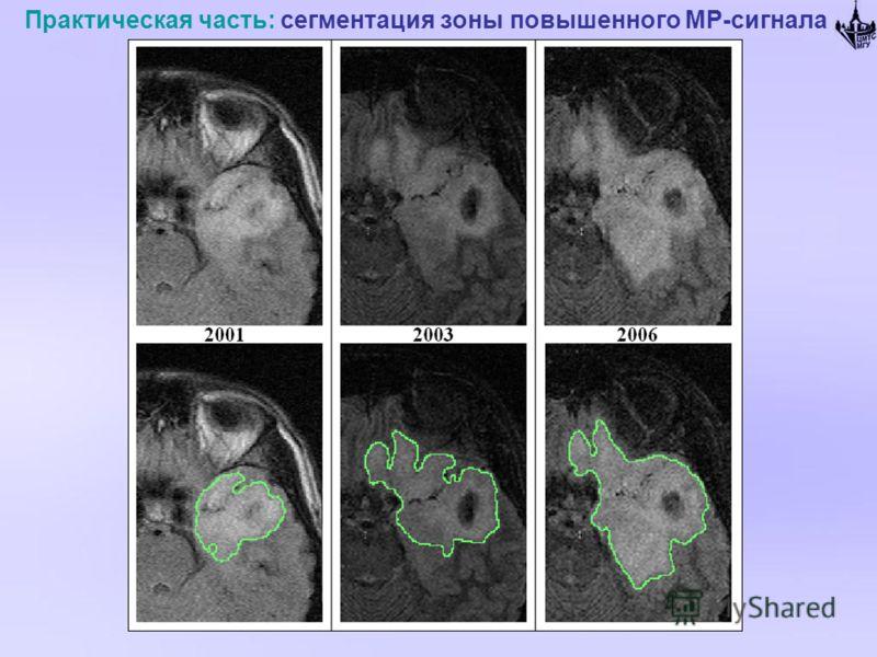 Практическая часть: сегментация зоны повышенного МР-сигнала