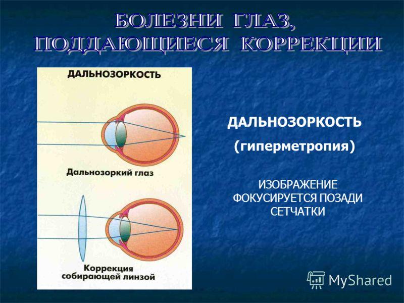 ДАЛЬНОЗОРКОСТЬ (гиперметропия) ИЗОБРАЖЕНИЕ ФОКУСИРУЕТСЯ ПОЗАДИ СЕТЧАТКИ