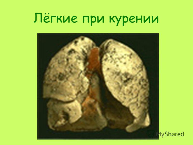 Лёгкие при курении