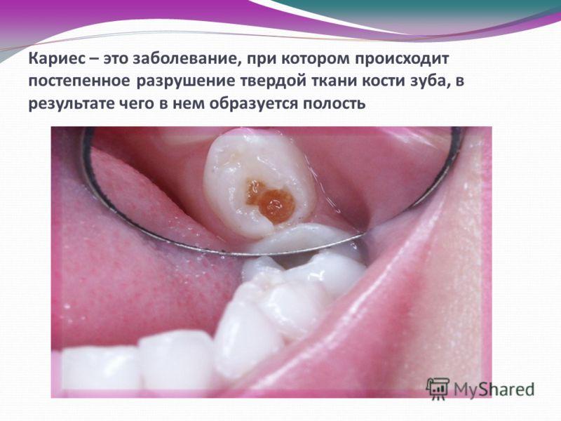 Кариес – это заболевание, при котором происходит постепенное разрушение твердой ткани кости зуба, в результате чего в нем образуется полость