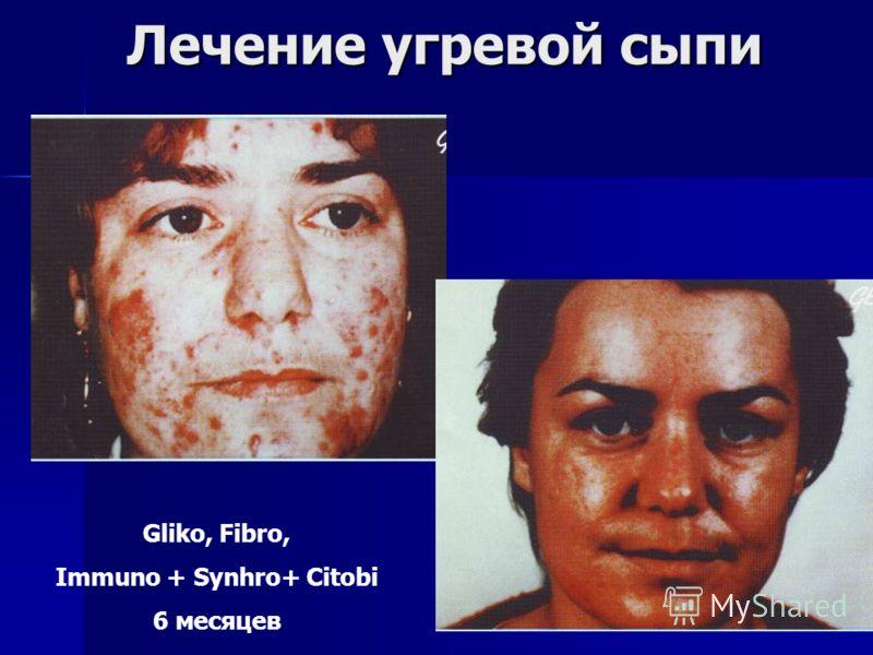 Лечение угревой сыпи Gliko, Fibro, Immuno + Synhro+ Citobi 6 месяцев