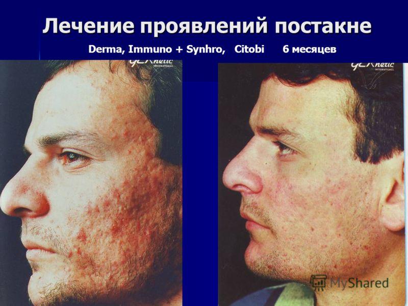 Лечение проявлений постакне Лечение проявлений постакне Derma, Immuno + Synhro, Citobi 6 месяцев