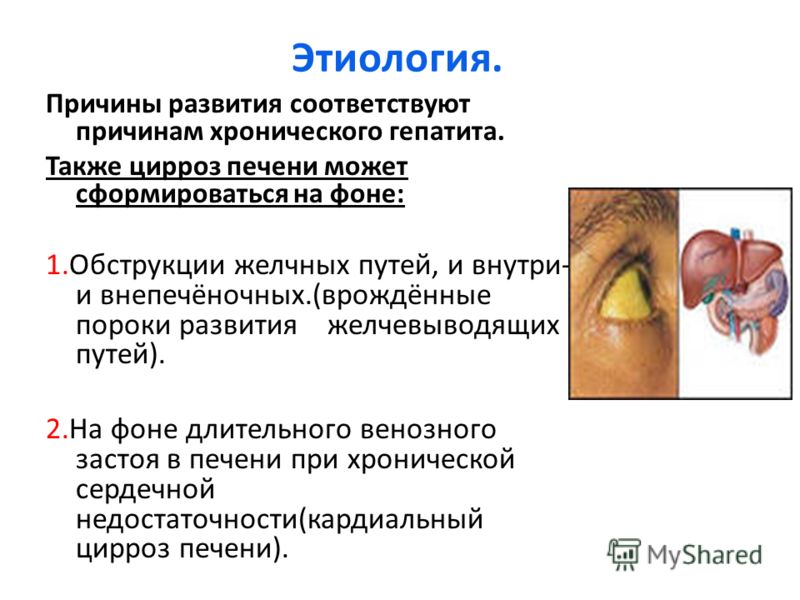 Плавленный сыр при заболеваниях печени