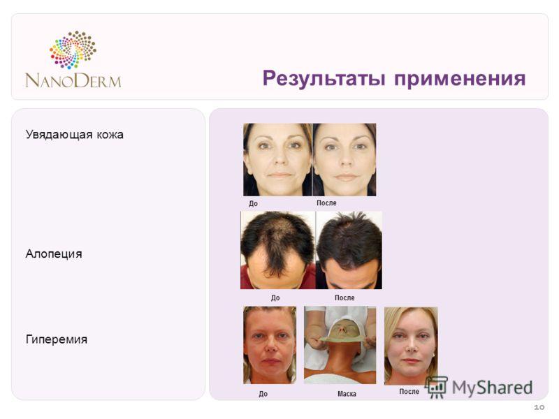 Результаты применения Увядающая кожа Алопеция Гиперемия До После Маска ДоПосле 10
