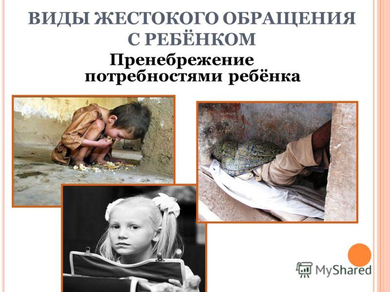 Пренебрежение потребностями ребёнка ВИДЫ ЖЕСТОКОГО ОБРАЩЕНИЯ С РЕБЁНКОМ