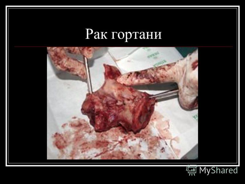 Рак гортани фото