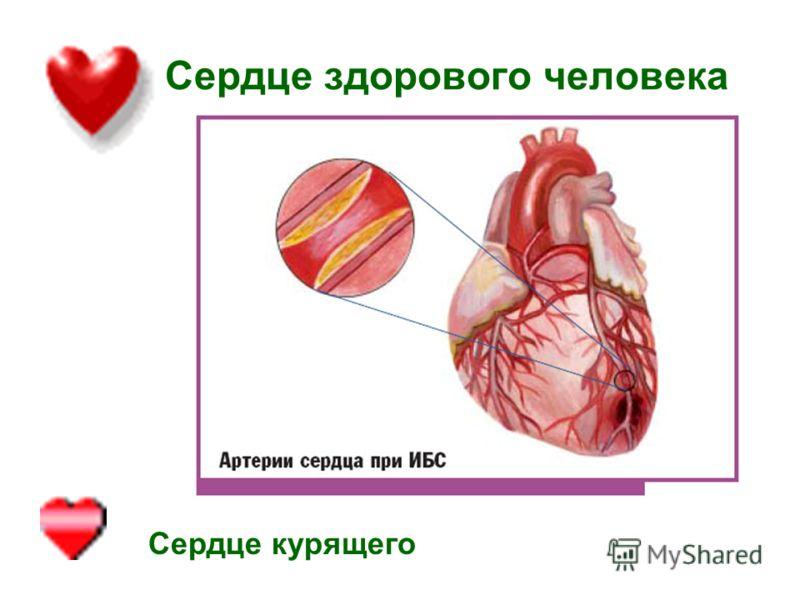 Сердце здорового человека Сердце курящего