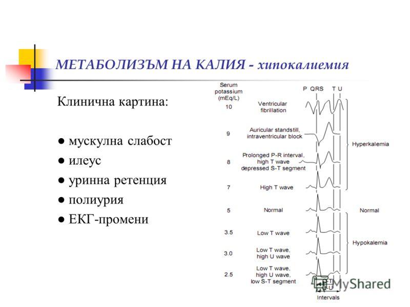 МЕТАБОЛИЗЪМ НА КАЛИЯ - хипокалиемия Клинична картина: мускулна слабост илеус уринна ретенция полиурия ЕКГ-промени