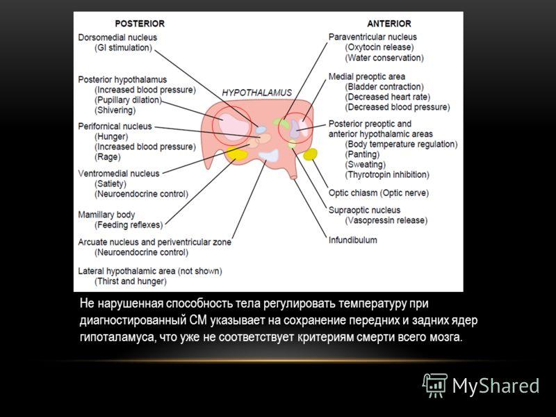Не нарушенная способность тела регулировать температуру при диагностированный СМ указывает на сохранение передних и задних ядер гипоталамуса, что уже не соответствует критериям смерти всего мозга.