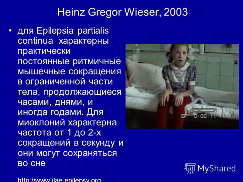 Heinz Gregor Wieser, 2003 для Epilepsia partialis continua характерны практически постоянные ритмичные мышечные сокращения в ограниченной части тела, продолжающиеся часами, днями, и иногда годами. Для миоклоний характерна частота от 1 до 2-х сокращен