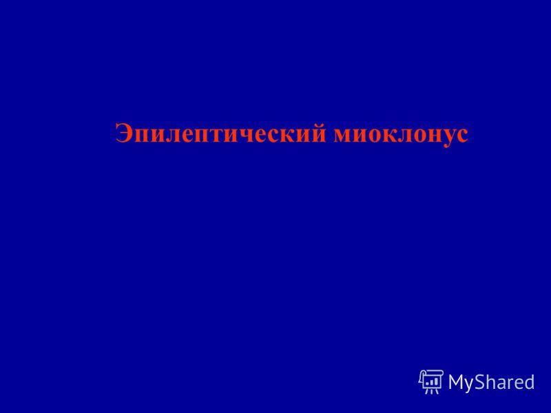 Эпилептический миоклонус
