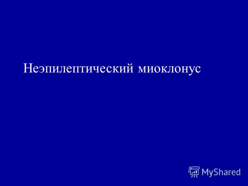 Неэпилептический миоклонус