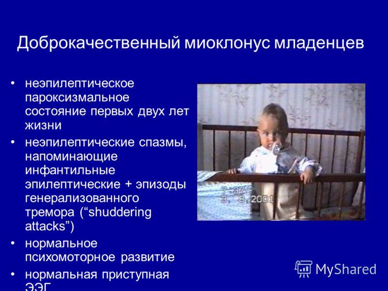 Доброкачественный миоклонус младенцев неэпилептическое пароксизмальное состояние первых двух лет жизни неэпилептические спазмы, напоминающие инфантильные эпилептические + эпизоды генерализованного тремора (shuddering attacks) нормальное психомоторное
