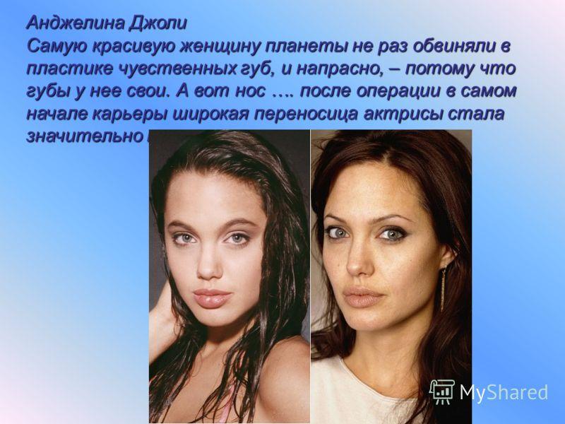 Анджелина Джоли Самую красивую женщину планеты не раз обвиняли в пластике чувственных губ, и напрасно, – потому что губы у нее свои. А вот нос …. после операции в самом начале карьеры широкая переносица актрисы стала значительно тоньше.