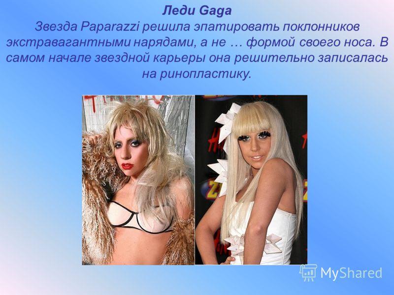 Леди Gaga Звезда Paparazzi решила эпатировать поклонников экстравагантными нарядами, а не … формой своего носа. В самом начале звездной карьеры она решительно записалась на ринопластику.