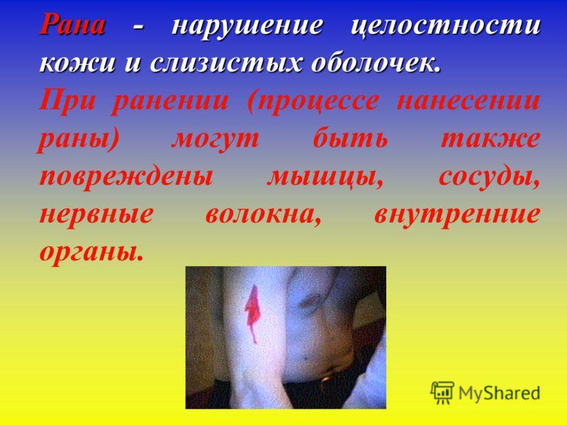 Первая помощь при ранениях Выполнили студентки группы М-422 Харина Алиса Волгоград – 2011 г.