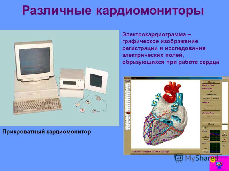 Различные кардиомониторы Прикроватный кардиомонитор Электрокардиограмма – графическое изображение регистрации и исследования электрических полей, образующихся при работе сердца