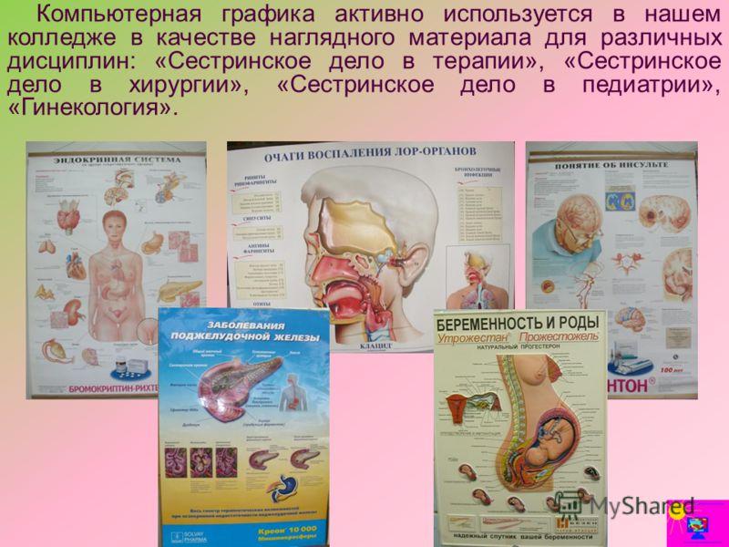 Компьютерная графика активно используется в нашем колледже в качестве наглядного материала для различных дисциплин: «Сестринское дело в терапии», «Сестринское дело в хирургии», «Сестринское дело в педиатрии», «Гинекология».