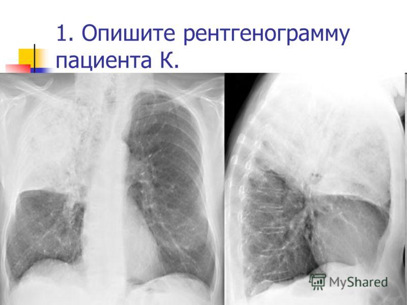 1. Опишите рентгенограмму пациента К.